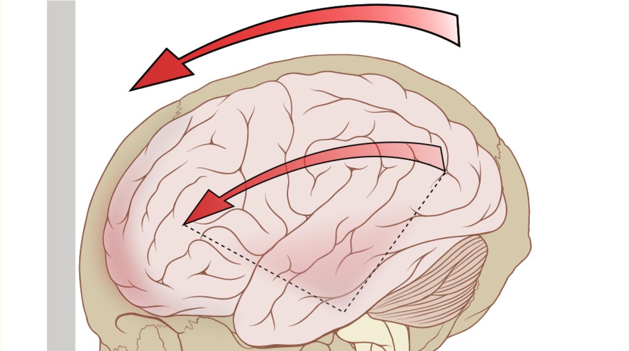 物理学者「脳震盪を理解するために…ビーカーをハンマーで叩いてみた」