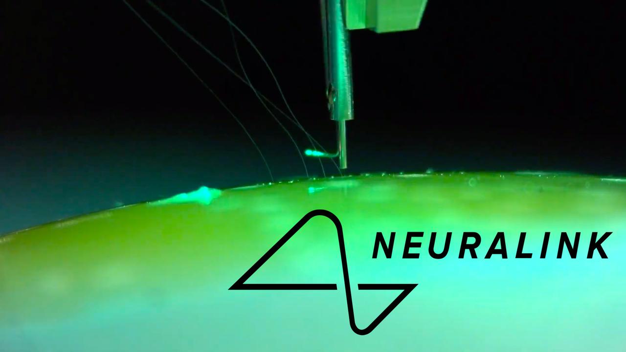 ついに始まる、脳直結インターフェースの時代。イーロン・マスクのAI危機対策として