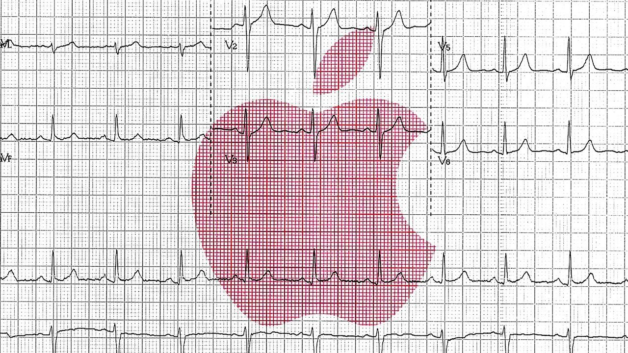 Apple Watchはニセ科学を超えられるか? 3つの新研究で挑むこと