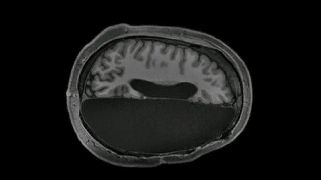 半分になった脳でも、正常な脳の神経ネットワークを凌駕できることが判明