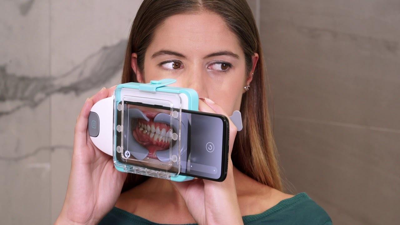 口腔内のパノラマ写真。スマホを使う歯のスキャナーが凄まじいインパクト