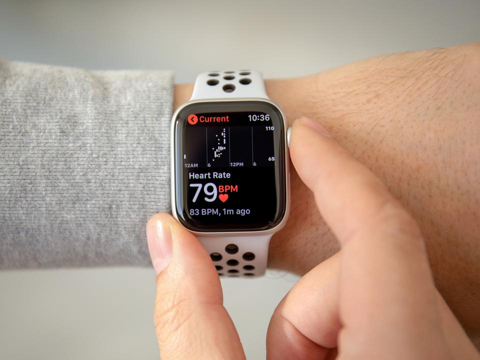 Apple Watchへの血糖値計搭載はそう遠くない?