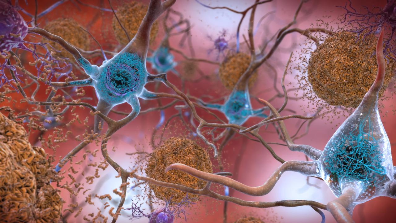 アルツハイマー病患者の脳内から、異常な形の鉄と銅が発見される