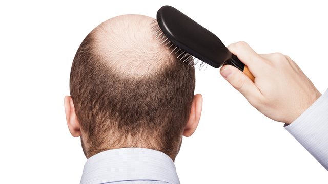 成人の皮膚細胞から毛の生える幹細胞できた、世界初