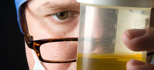 アメリカ人が採用面接の尿検査をパスするためやってること
