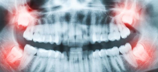 虫歯は電流でビビッと治す。痛くない虫歯治療法発見