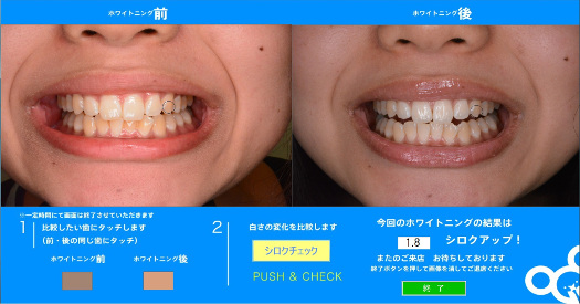 20160413_dental.jpg