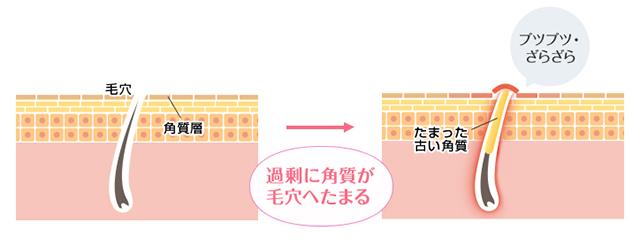 20180410_ninocure10