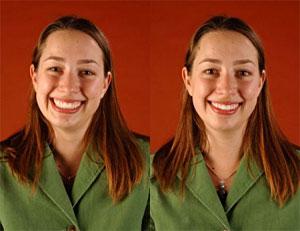 111031-smile-comparison.jpg