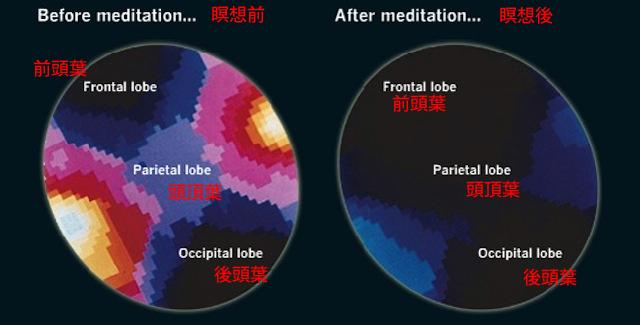瞑想中の脳内の様子