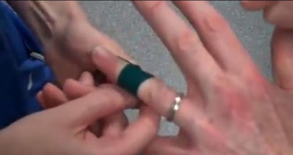 むくんだ指から指輪をするっと外せるゴムひもワザ