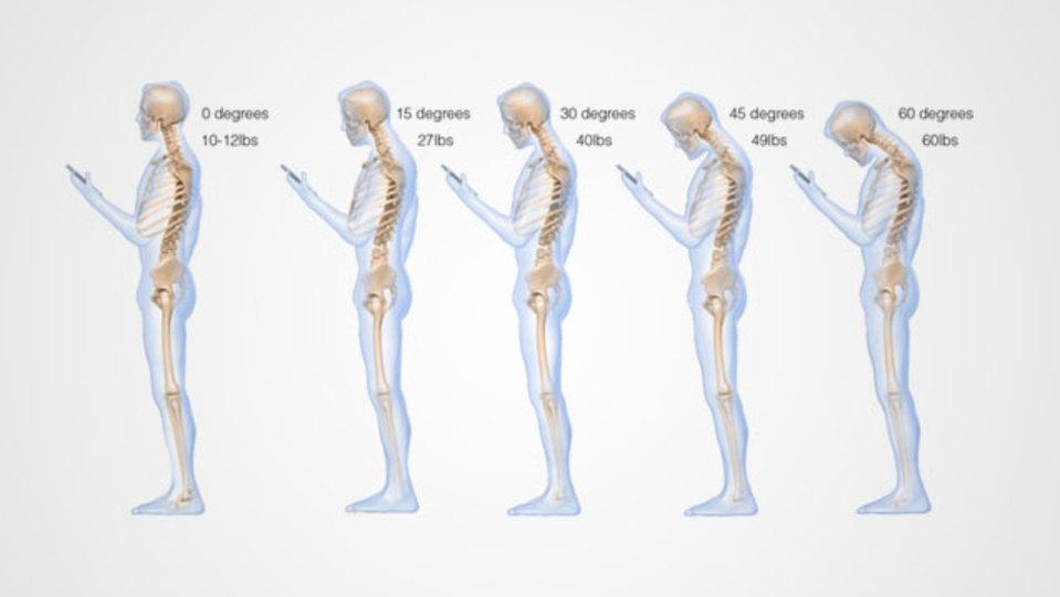 うつむいてのスマホ操作で背骨には30キロ近い負担がある:研究結果