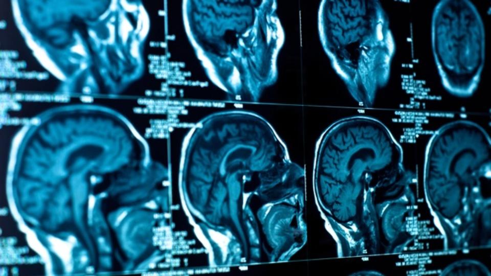 共感力が高い人は異なる脳を持っている:研究結果