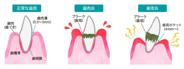 160317doltz_toothbrush.jpg