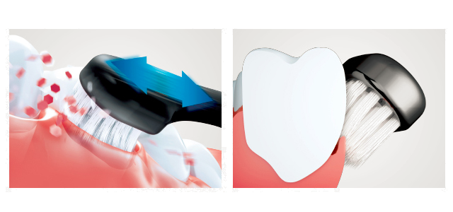 160317doltz_toothbrush4.png