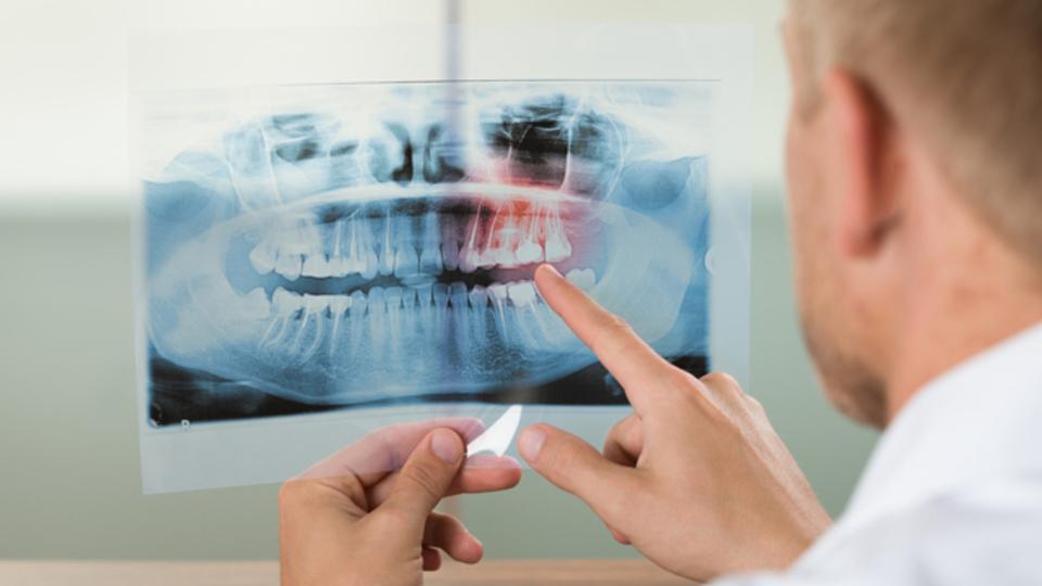 歯の「自己修復」を助ける素材が開発されたらしい