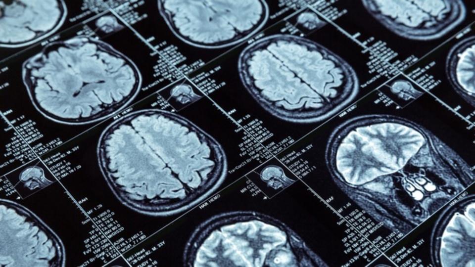 運動をしないことで脳が受けるダメージ