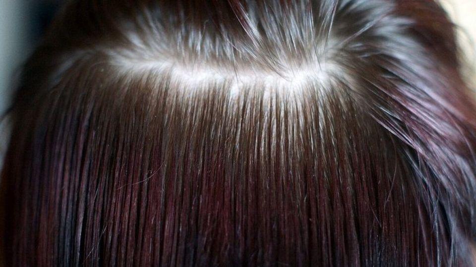 「抜け毛の本数」が正常範囲か簡単にチェックする2つの方法