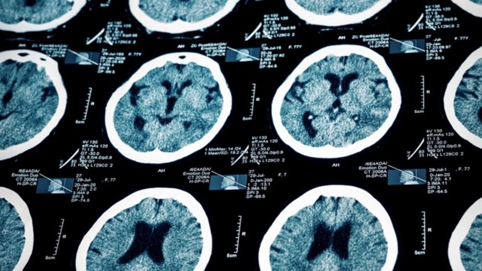 妊娠すると脳は実際に変わる:研究結果