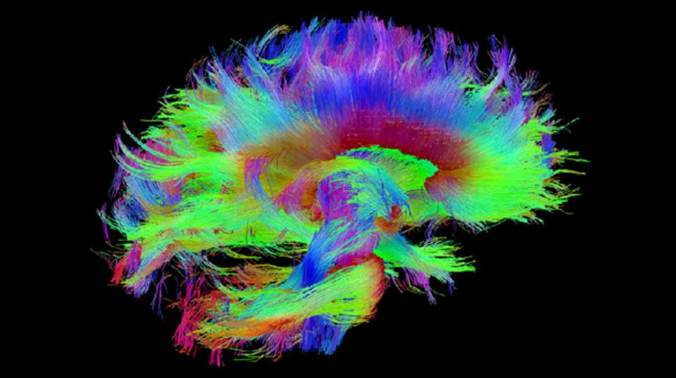 視覚障害者の脳からわかる、驚くべき事実