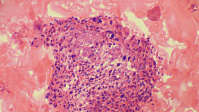 ヒトパピローマウイルスは男性にも危険をもたらす:研究結果