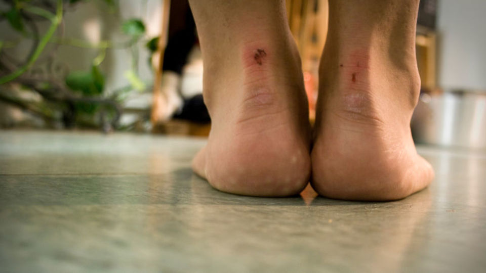 はがす キズパワーパッド キズパワーパッドを剥がすタイミングは?無理やり剥がしたら血が出て痛くて辛い!