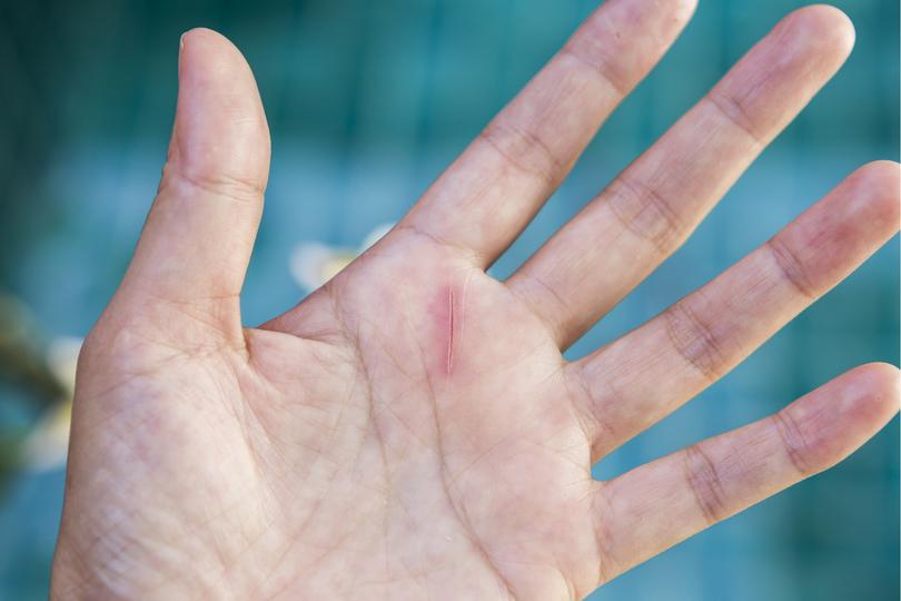 絆創膏 切り傷 切り傷の時に絆創膏はいつまで貼るの?交換のタイミングとお風呂の時はどうしたらいい?