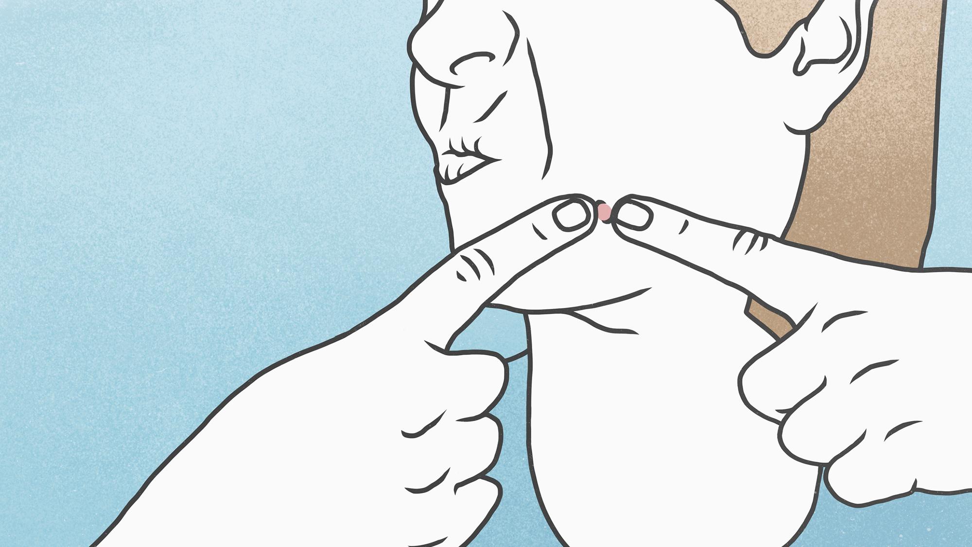 の 吹き出物 原因 顎