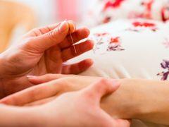 東洋医学も取り入れる。妊婦に人気の鍼【ドイツでママになる】