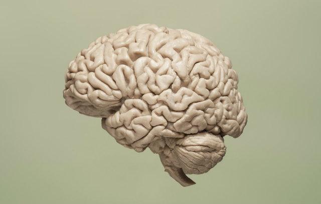 20180516_brain5