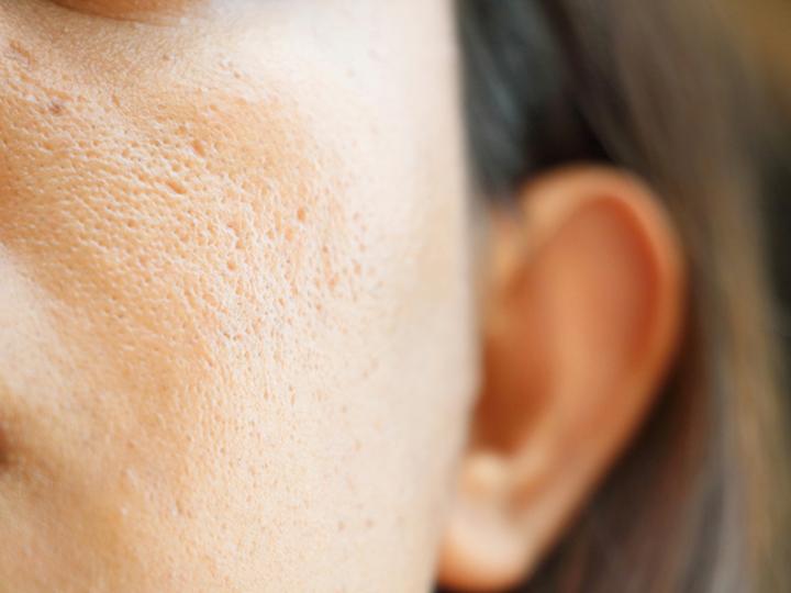 30歳を過ぎたら気を付けたい「たるみ毛穴」の対処法