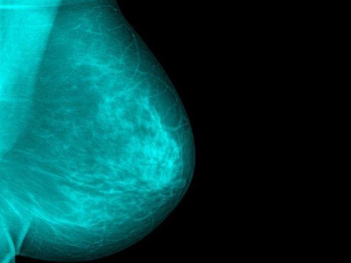 しこりだけじゃない? 疑うべき乳がんのサイン4つに気をつけて
