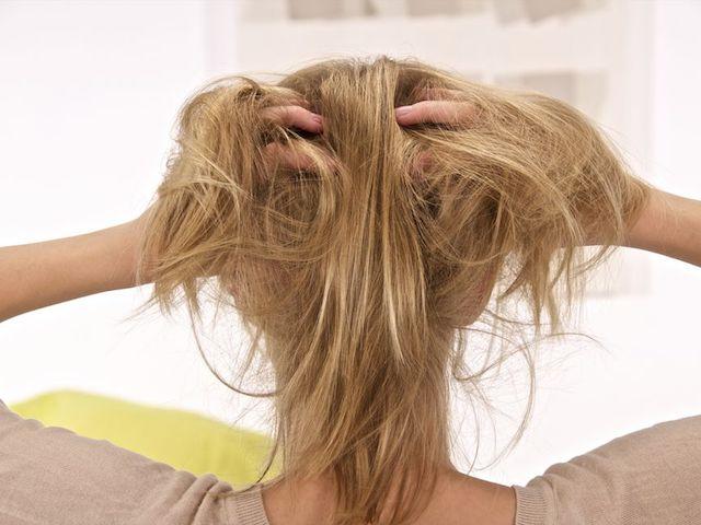頭皮の乾癬0