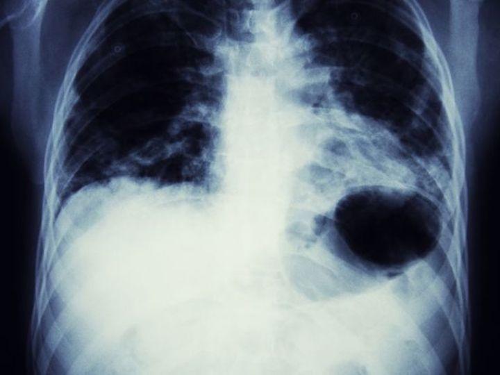 免疫治療で肺がんに勝利。アメリカの研究で明らかに