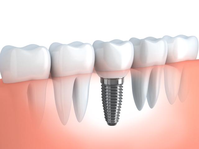 inplant_2