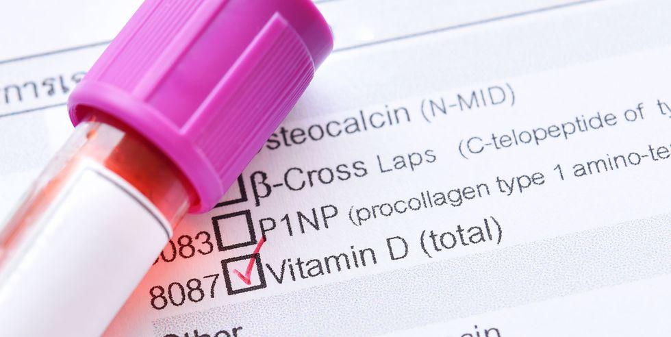 26ビタミンDの検査