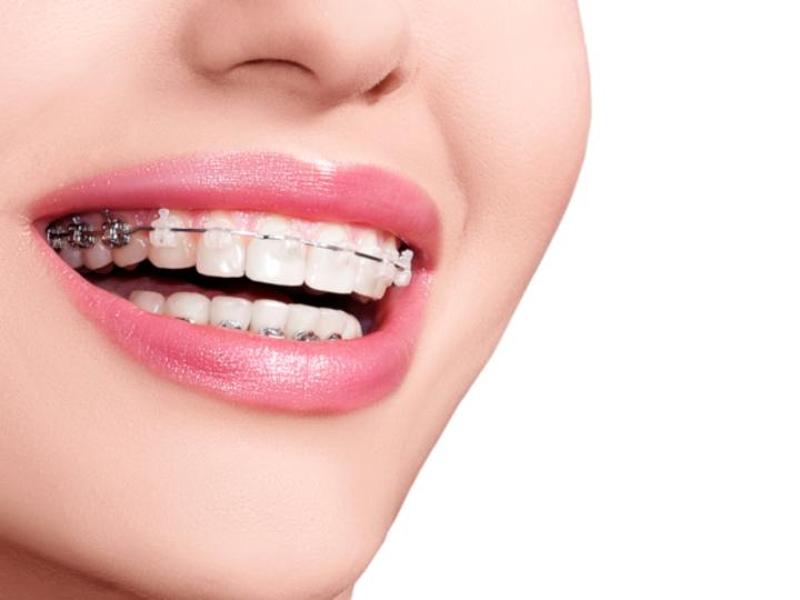 歯科矯正のメリットとは? いつまで受けられる?【歯や歯医者さん基本のき Vol.7】