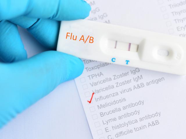 インフルエンザ検査