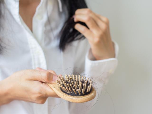 髪が抜ける女性