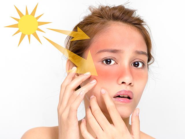 紫外線と日焼け
