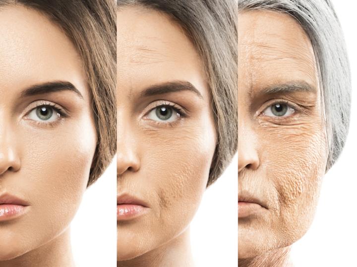 老化していく様子