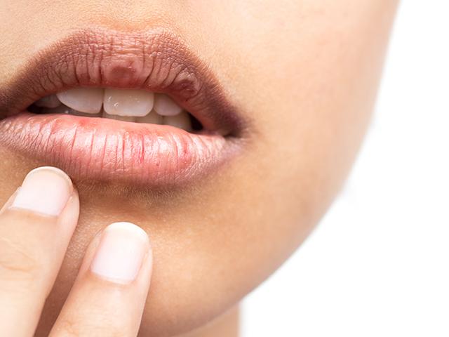 口の周りの乾燥
