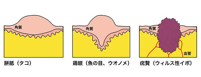 イボのウィルス