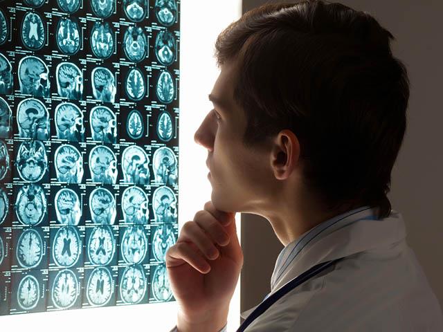 脳の画像診断