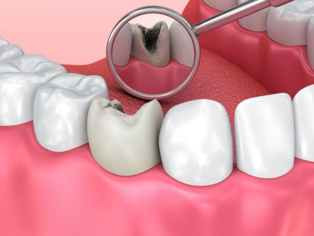 虫歯のCG