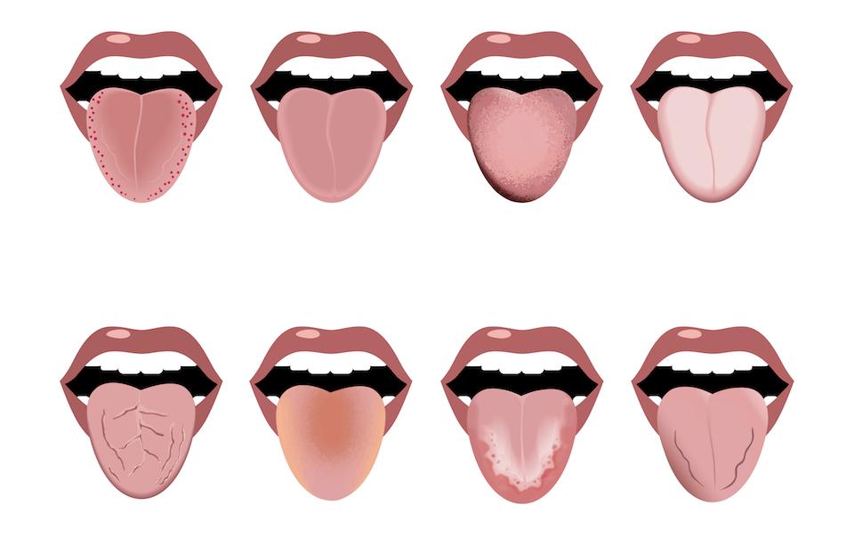 舌のタイプ