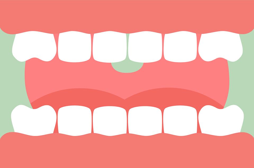 歯と舌の口内のイラスト