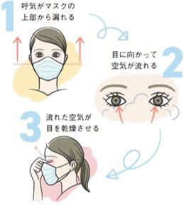 マスクと涙液トラブル_re
