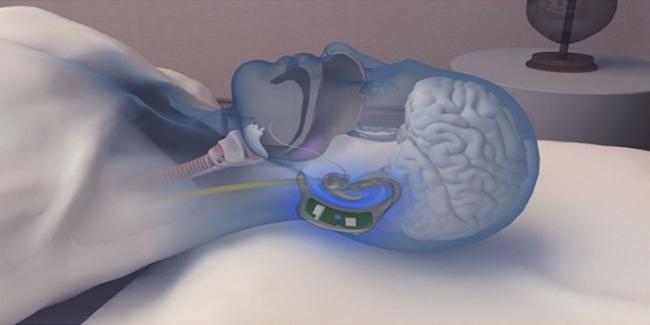 いびきで困っている人を助けるイヤホン型ガジェット「Snore Circle」の便利さ