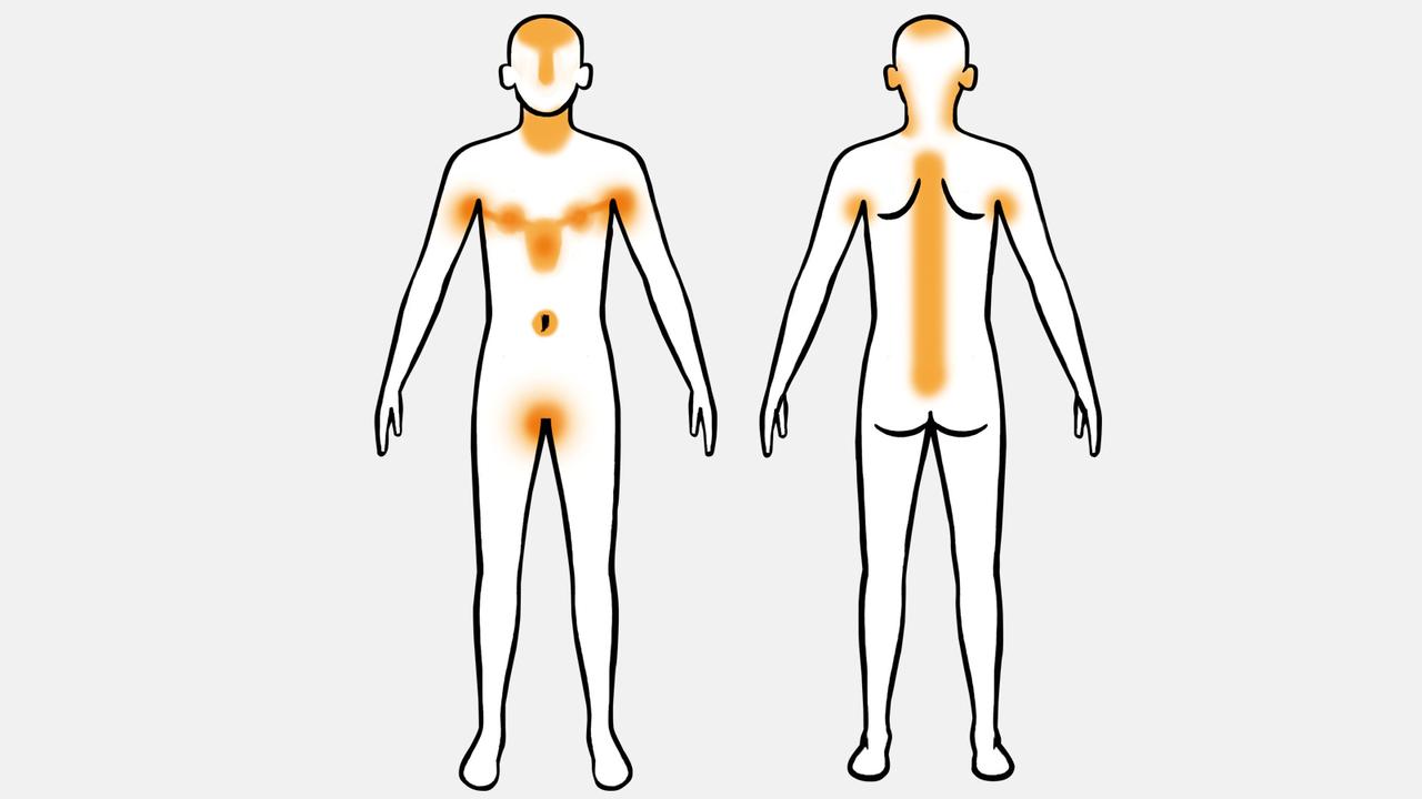 皮脂腺はカラダのこの部分に集中